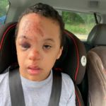 Family outraged after school refuses to share footage showing how boy with Down syndrome was injured on bus